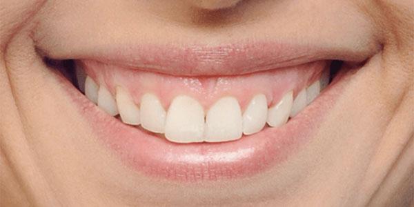 damon braces before