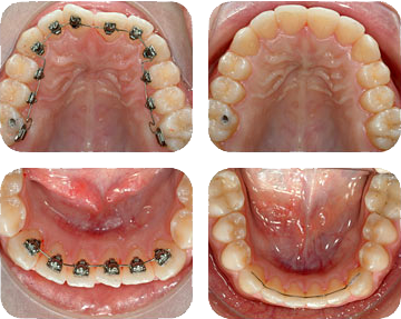 internal braces