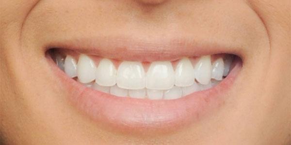 after damon braces