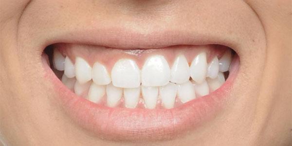 before damon braces