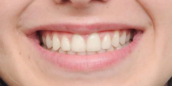 Teen braces after