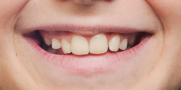 Teen braces before