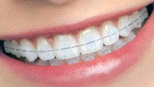 3M clarity braces