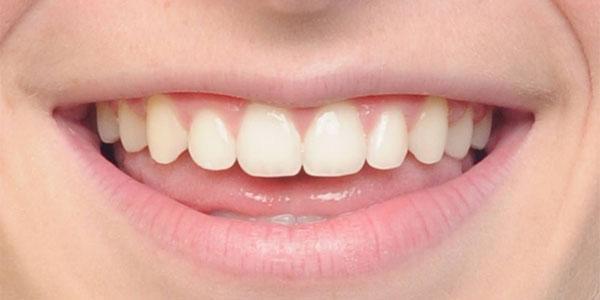 child after braces