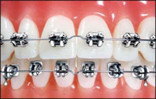braces thailand