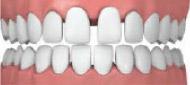 wide spaced teeth