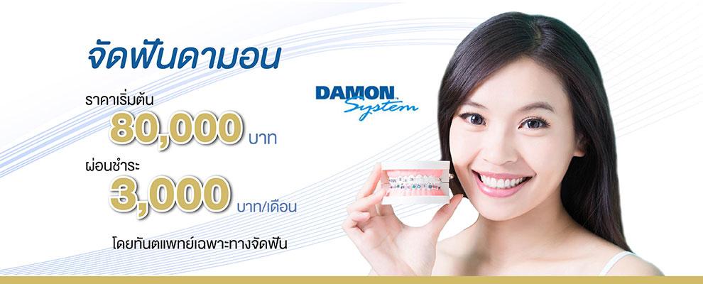 damon braces prices