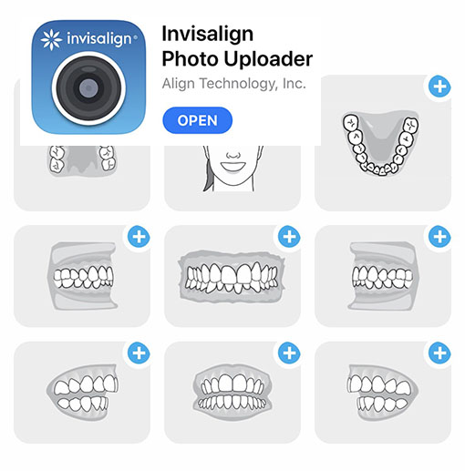invisalign package