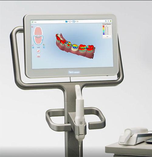 intral oral scanner