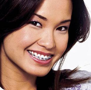 bangkok metal braces