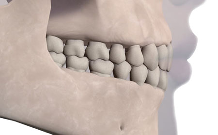 jaw occlusions
