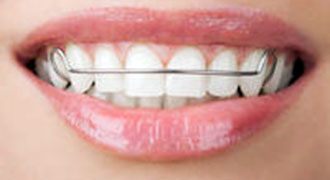metal retainers