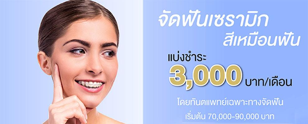 clear braces promotion